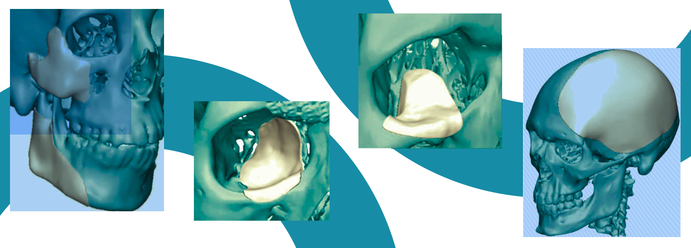 Four patient specific Su-Por implants