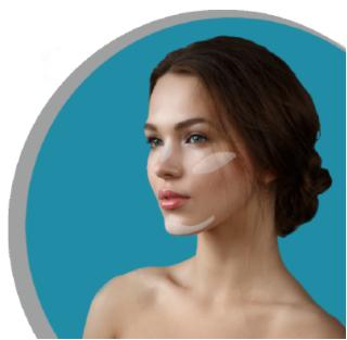 model with implants su-por surgical implants