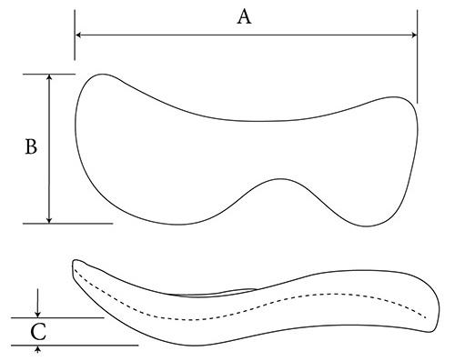 Inferior Orbital Rim composite diagram