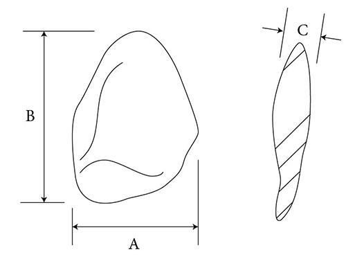 Enophthalmos Wedge diagram