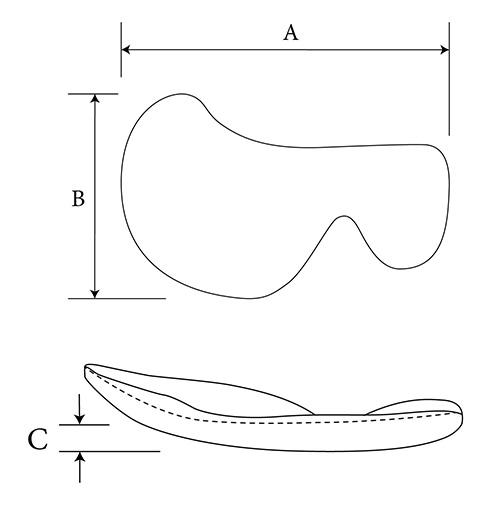Midface Rim diagram