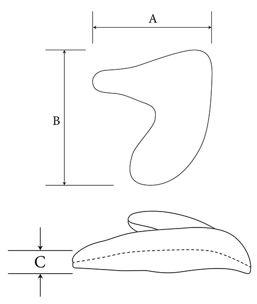 Inferior Medial Orbital Rim diagram