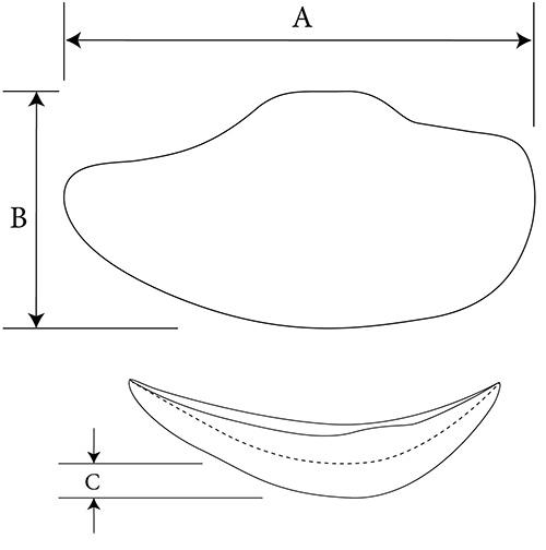Extended Malar diagram