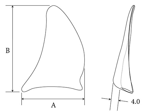 Superior Lateral Orbital Rim diagram