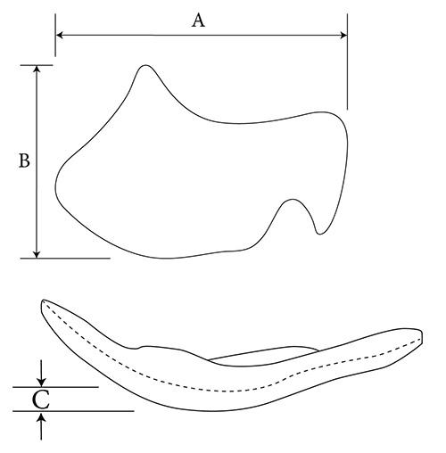 Midface Contour diagram
