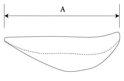Nasal Radix diagram