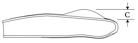 SP Mandibular Angle diagram 2