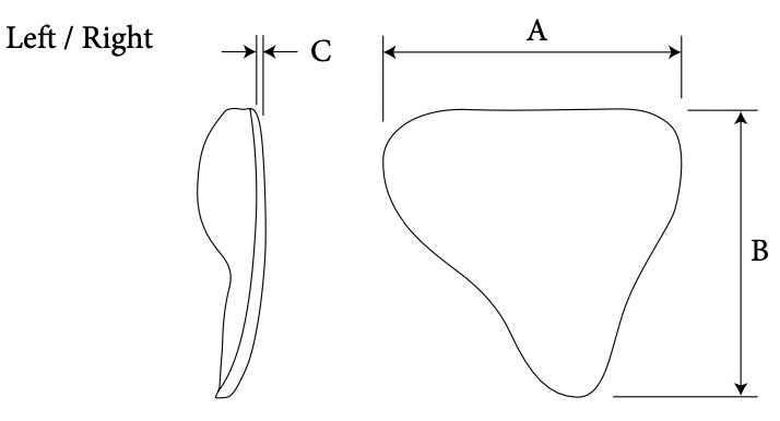 mastoid diagram