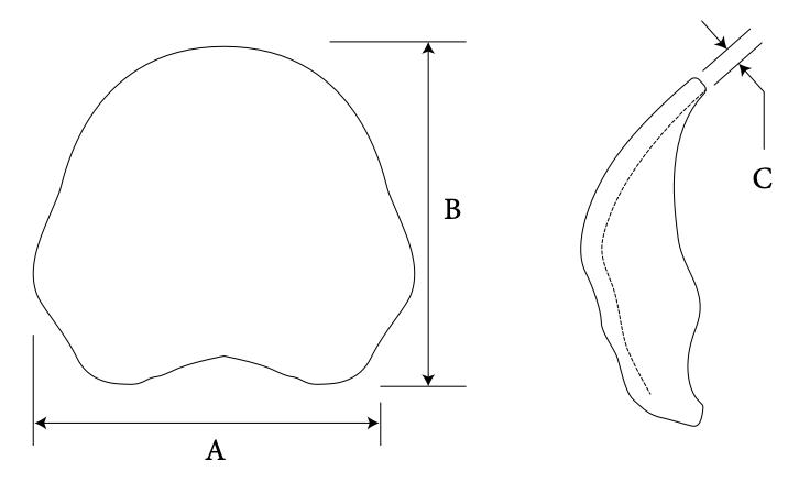 Occipital diagram